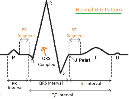 ECG test waveforms
