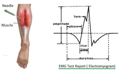 EMG electromyogram